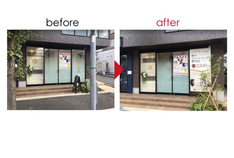 戸田市のホワイトニング専門店のビフォーアフター